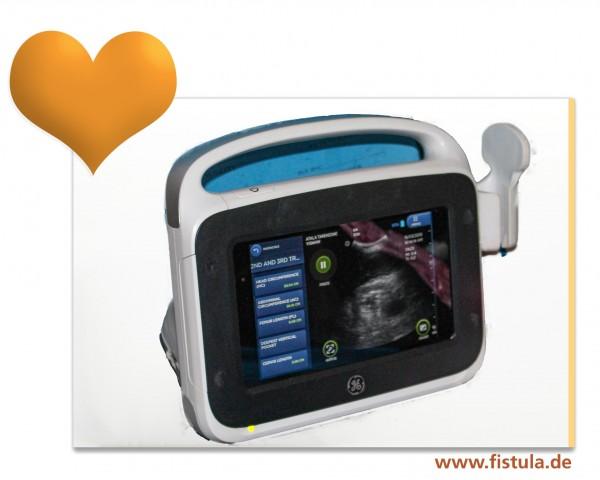 Ein tragbares Ultraschallgerät